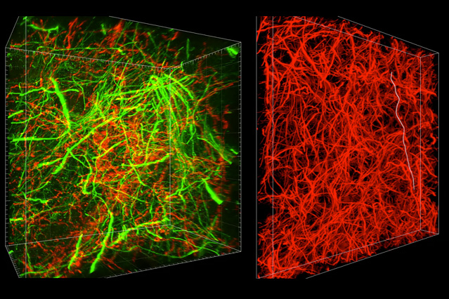Brain-imaging method reveals subcellular details, long-range connections