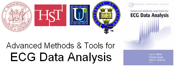 Advanced Methods and Tools for ECG Data Analysis - Gari Clifford
